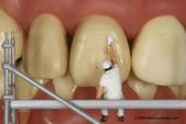 N0036264 Tooth whitening