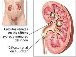 Calculos renales