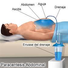 Sintomas y tratamiento para la ascitis