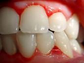 6 posibles causas de porque sangran las encías