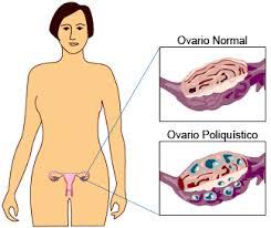 Qué es un ovario policístico y cuál es su tratamiento