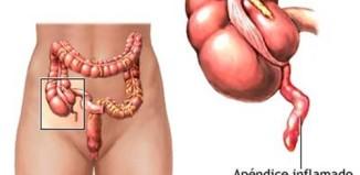 Porqué quitan el apendice