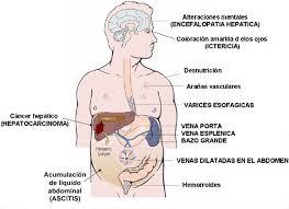 síntomas del higado