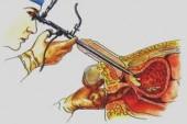 operación de próstata