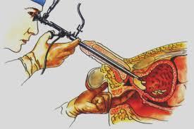 Reseccion transuretral de prostata