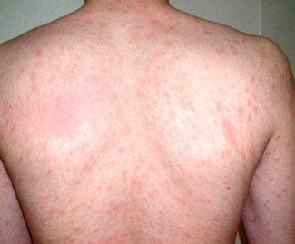 El análisis la inmunoglobulina a atopicheskom la dermatitis