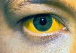 porque ponen ojos amarillos